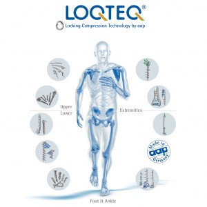 LOQTEQ® Anatomical Plating System